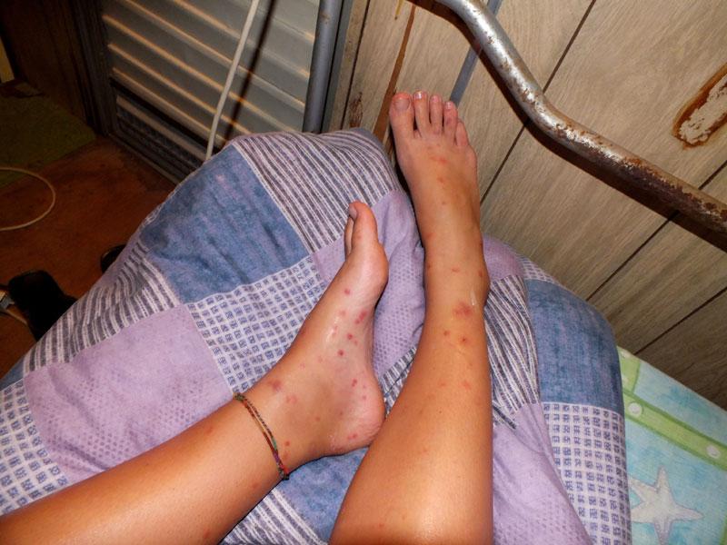 Bed Bugs In Australien